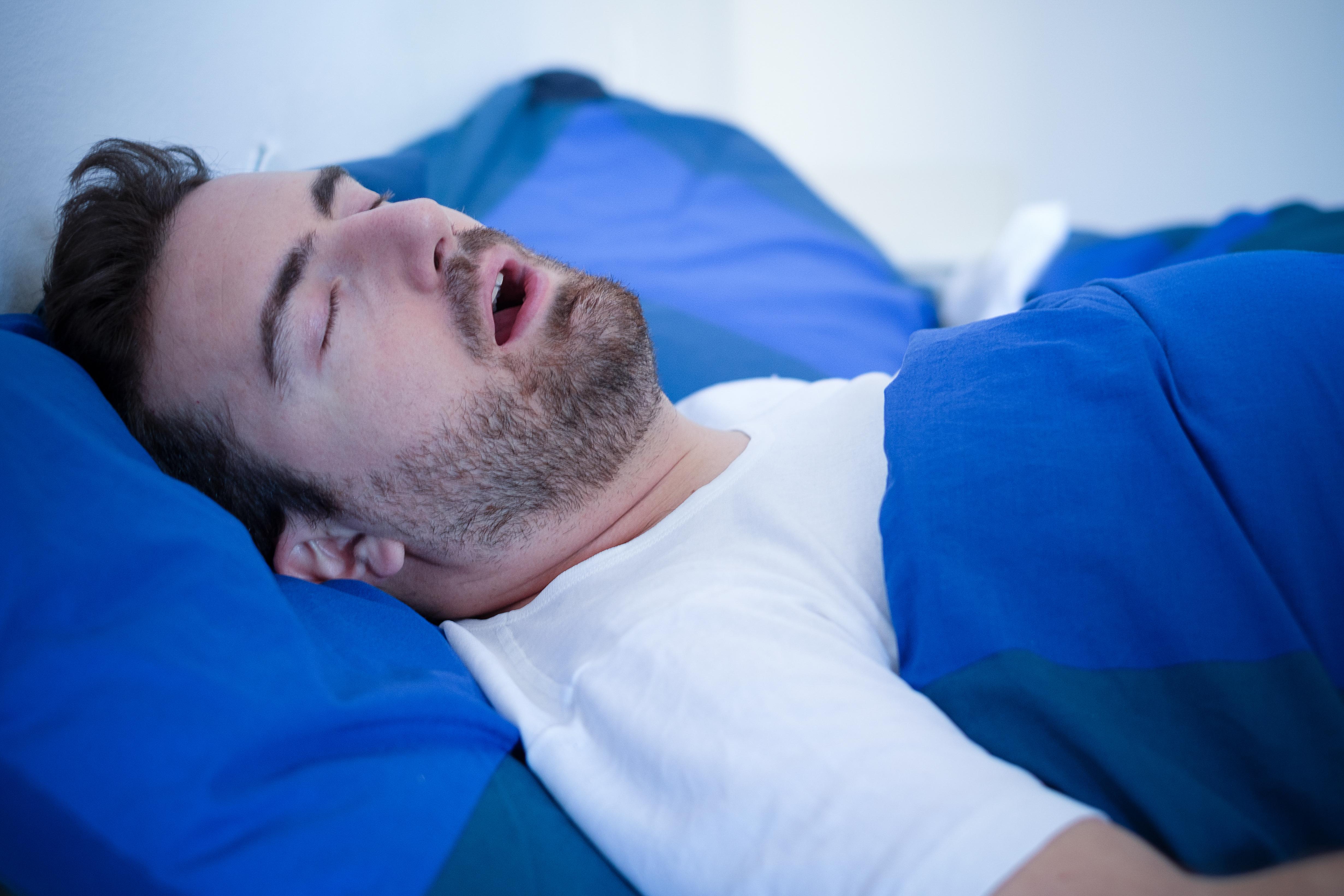¿En qué se relacionan la apnea del sueño y el sobrepeso?